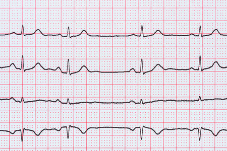 ecg monitoring: Sinus Heart Rhythm On Electrocardiogram Record Paper Showing Normal P Wave, PR and QT Interval and QRS Complex