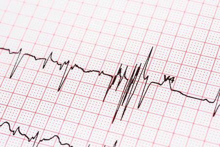 心電図記録紙の発生 写真素材
