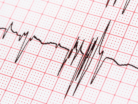 electrocardiograma: Extras�stoles En El Papel de registro del electrocardiograma Foto de archivo