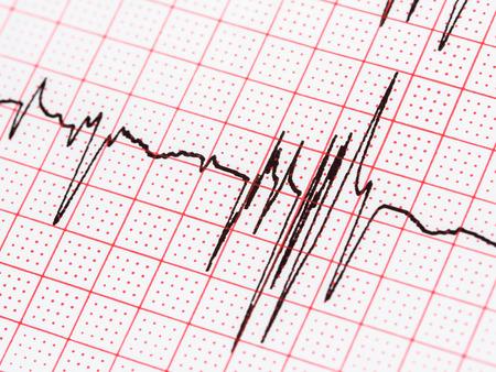 elettrocardiogramma: Extrasistoli su elettrocardiogramma carta di registrazione Archivio Fotografico