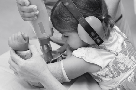 surgical removal: Nurse removing an arm orthopedic cast of a child.(BW))