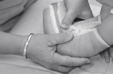 surgical removal: Nurse removing an arm orthopedic cast of a child.(BW) Stock Photo
