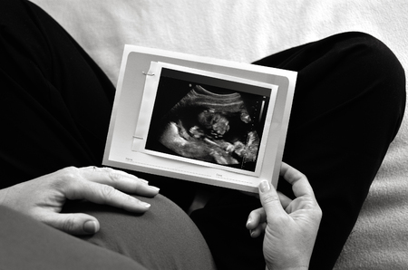 ultrasound scan: Pregnant woman looking at ultrasound scan of baby, close up of scan. Concept photo of pregnancy, pregnant woman, family, parenthood, motherhood. Crop image BW Stock Photo