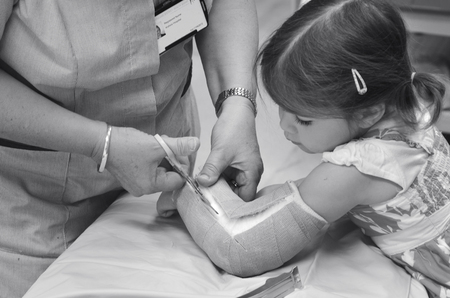surgical removal: KAITAIA, NZ  - MAR 27 2014:Nurse removing an arm orthopedic cast of a child (Talya Ben-Ari age 3). Forearm fractures account for 40% to 50% of all childhood fractures.(BW)