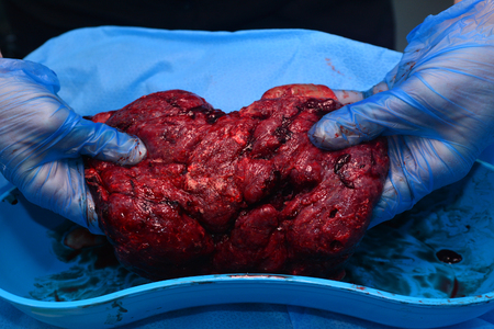 AUCKLAND - JUNE 07 2014:Human placenta.It allow nutrient uptake, waste elimination and gas exchange via the mother's blood supply, fights internal infection and produces hormones to support pregnancy.