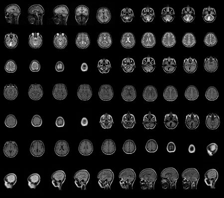 Brain and head MRI Stock Photo - 3411968