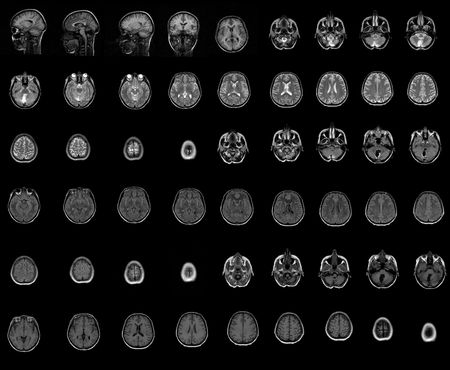 health medical image of an mri of the head showing the brain photo