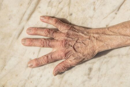 Wrinkled and aged hand of an elderly woman, placed on a marble slab. Old age, Melancholy, sadness and loneliness, death.