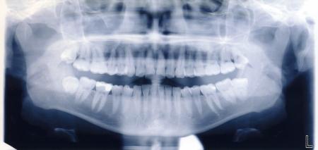 x-ray schieten van de menselijke mond en tanden