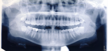 x-ray zastrzelić człowieka jamy ustnej i zębów Zdjęcie Seryjne