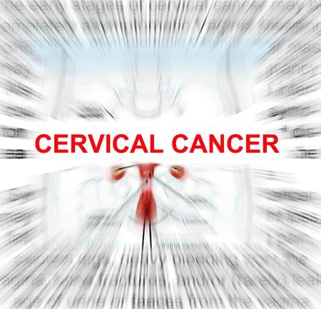 ovaire: se concentrer sur le cancer du col de l'ut�rus mot avec un fond d�finition