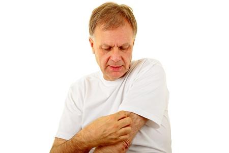 dermatologo: uomo adulto graffiare il braccio prurito