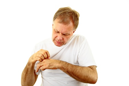 adult man scratch his itchy hand Stock Photo