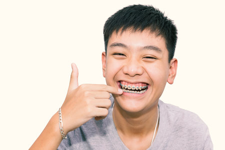Beautiful smiling of handsome boy pointing to teeth brace dental on isolated background. (Vintage tone)