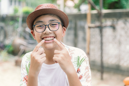 Asia teenager with teeth brace dental smiling and happy for lifestyle or healthcare concept background in Vintage tone. 免版税图像