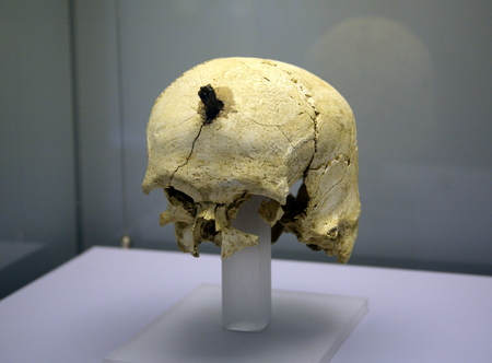 severed: Ancient Iberian skull, severed heads - symbols of power
