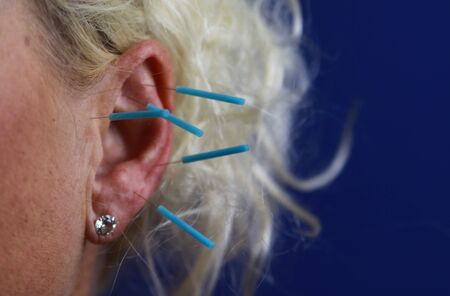 Close up of human female ear with blue needles: Ear acupuncture as a form of alternative chinese medicine