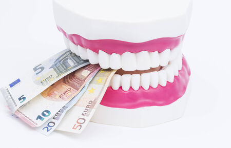 surgery expenses: A tooth model with euro notes isolated on white background