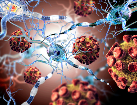 High quality 3d render of viruses attacking nerve cells, concept for Neurologic Diseases, tumors and brain surgery.