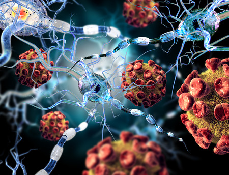 sclerosis: High quality 3d render of viruses attacking nerve cells, concept for Neurologic Diseases, tumors and brain surgery.