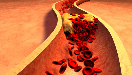human blood vessel: Clogged Artery with platelets and cholesterol plaque, concept for health risk for obesity or dieting and nutrition problems Stock Photo