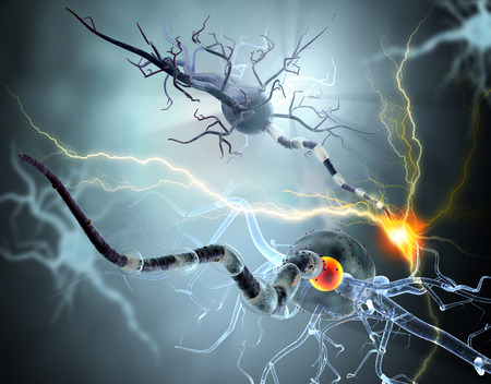High quality 3d render of  nerve cells, concept for Neurologic Diseases, tumors and brain surgery.