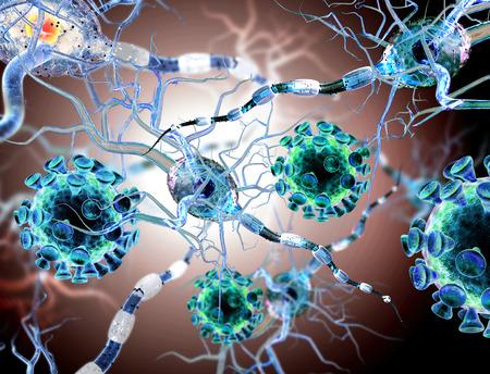 cellule nervose: Alta qualit� di rendering 3d dei virus che attacca le cellule nervose, concetto per le Malattie Neurologiche, tumori e la chirurgia del cervello.