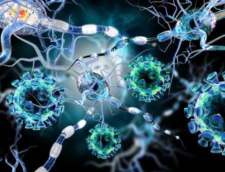 Hochwertige 3d Render Viren angreifen Nervenzellen, Konzept für Neurologische Erkrankungen, Tumoren und Gehirnchirurgie. Standard-Bild - 37591629