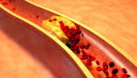 vasos sanguineos: Arteria obstruida con las plaquetas y la placa de colesterol, el concepto de riesgo para la salud de la obesidad o la dieta y los problemas de nutrición Foto de archivo