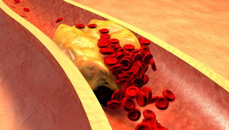 piastrine: Arteria ostruita con piastrine e placca di colesterolo, concetto per il rischio per la salute per l'obesit� o la dieta e problemi di nutrizione