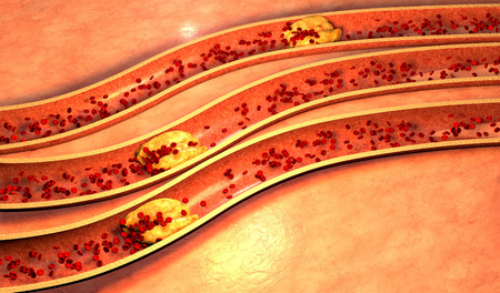 Clogged Artery with platelets and cholesterol plaque, concept for health risk for obesity or dieting and nutrition problems photo