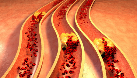 Clogged Artery with platelets and cholesterol plaque, concept for health risk for obesity or dieting and nutrition problems 写真素材