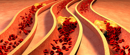 food science: Clogged Artery with platelets and cholesterol plaque, concept for health risk for obesity or dieting and nutrition problems Stock Photo