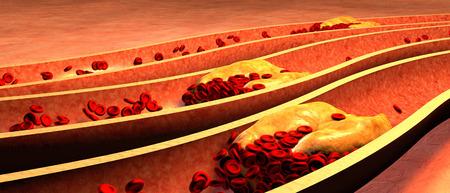 grasas saturadas: Arteria obstruida con las plaquetas y la placa de colesterol, el concepto de riesgo para la salud de la obesidad o la dieta y los problemas de nutrición Foto de archivo