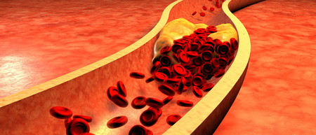 3d person: Clogged Artery with platelets and cholesterol plaque, concept for health risk for obesity or dieting and nutrition problems Stock Photo