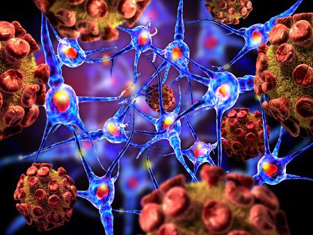 cellule nervose: Illustrazione 3D dei virus che attacca le cellule nervose, concetto per le Malattie Neurologiche, tumori e la chirurgia del cervello.
