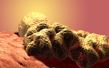 cancer cells: Cancer cell tumor, 3d medical illustration Stock Photo