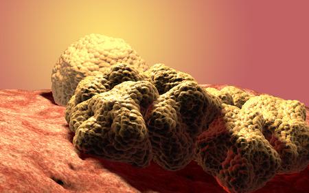 Cancer cell tumor, 3d medical illustration Standard-Bild