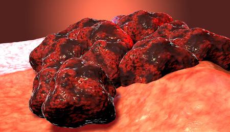 Cancer cell tumor, 3d medical illustration Stock Photo