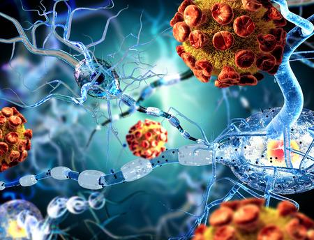 3d ilustracja koncepcji komórek nerwowych w chorobach neurologicznych, nowotworów i operacji mózgu.