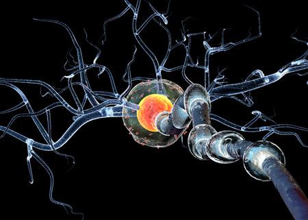 chory: Wysokiej jakości renderowania 3d nerwu cellsisolated na czarnym tle koncepcji na neurologicznych Choroby i chirurgii guzów mózgu.