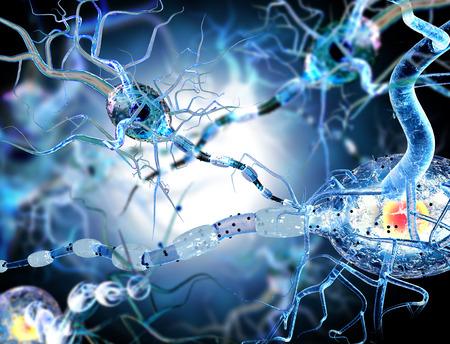 medicina: 3d ilustraci�n de nervio concepto de c�lulas de Enfermedades Neurol�gicas tumores y cirug�a cerebral. Foto de archivo