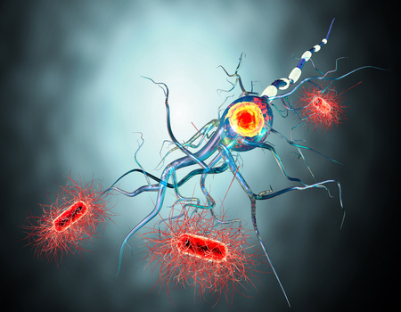 tumors: 3d illustration of nerve cells, concept for Neurological Diseases, tumors and brain surgery.