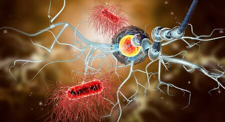 parkinsons: 3d illustration of nerve cells, concept for Neurological Diseases, tumors and brain surgery.