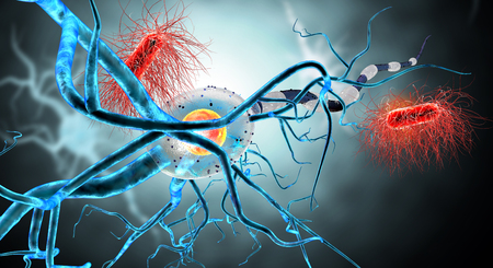 dystrophy: 3d illustration of nerve cells, concept for Neurological Diseases, tumors and brain surgery.