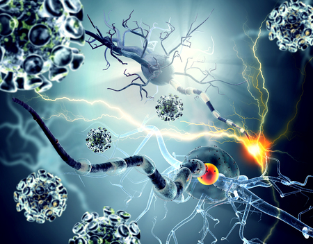 신경 세포, 신경 질환, 종양 및 뇌 수술 개념. 상세한 3D 일러스트