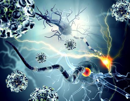 trastorno: Las células nerviosas, el concepto de las enfermedades neurológicas, tumores y cirugía cerebral. Ilustración detallada 3D