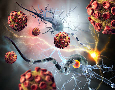 tumors: 3d illustration of viruses attacking nerve cells, concept for Neurologic Diseases, tumors and brain surgery.