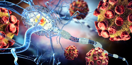 dystrophy: 3d illustration of viruses attacking nerve cells, concept for Neurologic Diseases, tumors and brain surgery.