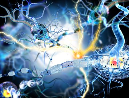 3d ilustración de las células nerviosas, el concepto de Enfermedades Neurológicas, tumores y cirugía cerebral. Foto de archivo